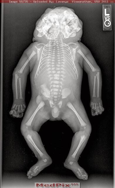 diprosopus  craniofacial duplication