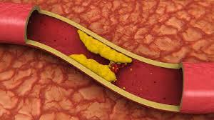 4 Gejala Kolesterol Tinggi yang Sering Diabaikan