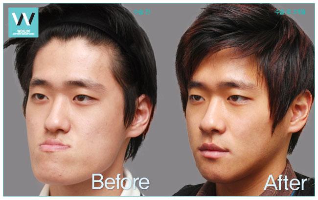 челюстно лицевая хирургия фото до и после