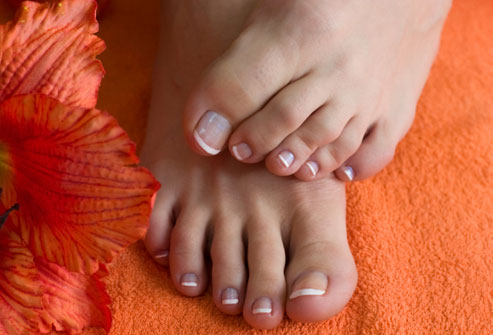 Blame your parents for bunion woes