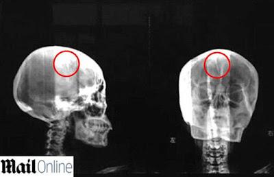buongiornolink - Soffre di mal di testa cronico da 40 anni i medici in ospedale fanno una scoperta choc