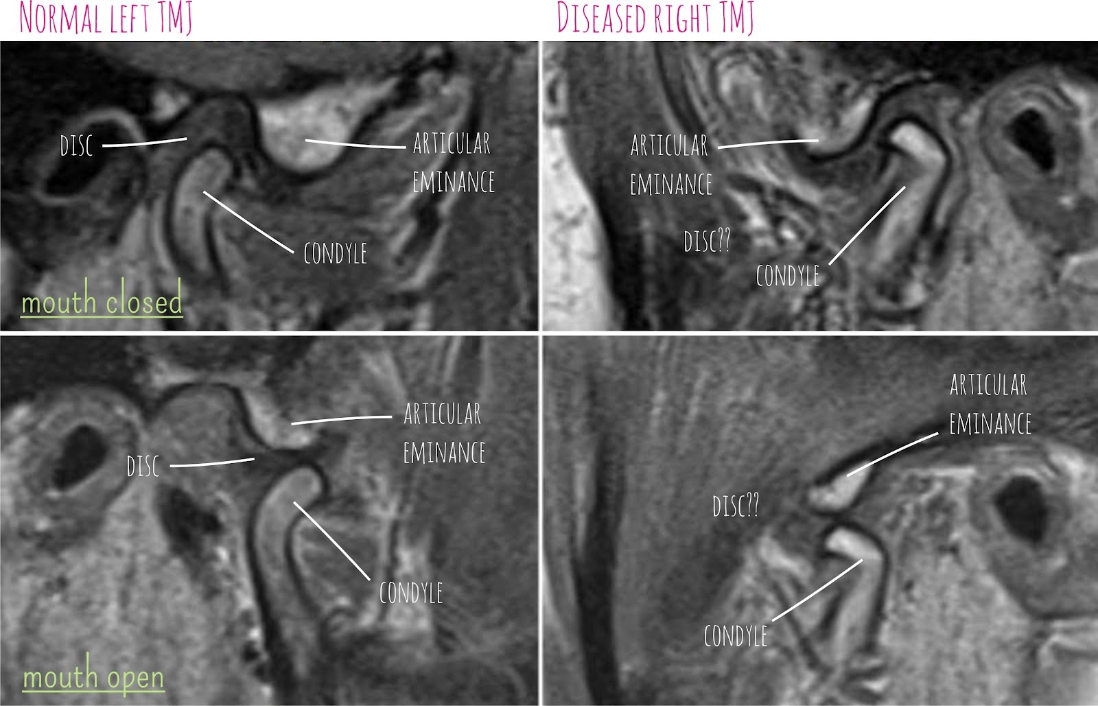 TMJ MRI scan anatomy | Radiology Anatomy Images