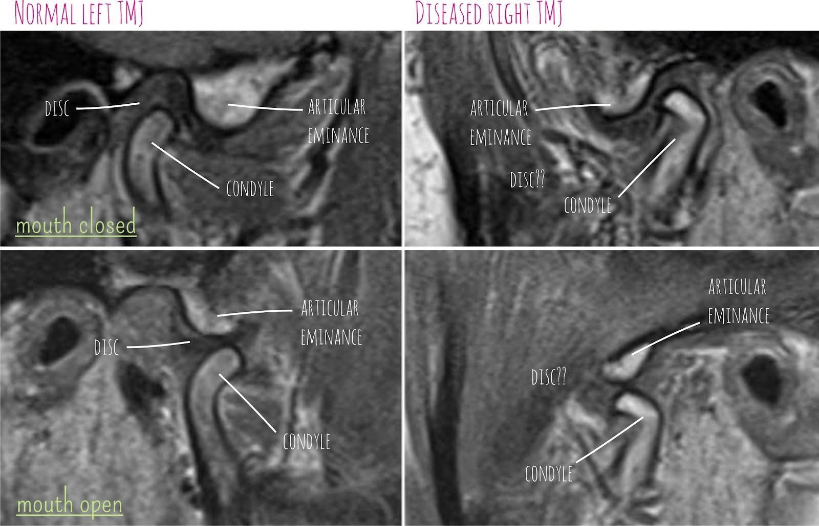 Radiology Anatomy Images : 2014