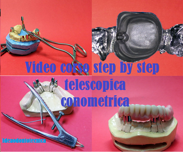video corso step by step protesi telescopica conometrica