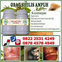 obat penyakit sipilis, obat penyakit raja singa, obat sipilis atau raja singa, obat sipilis ampuh