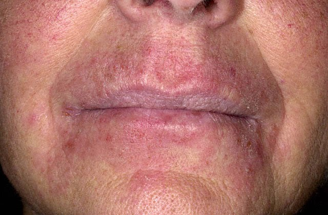 Dermatitis symptoms, types and treatment: Contact, atopic ...