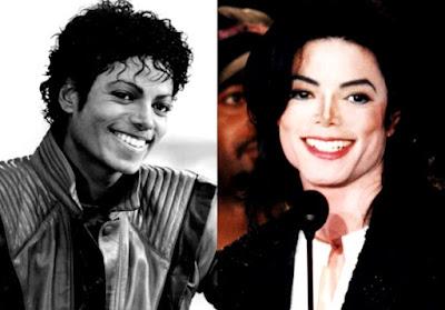 Michael Jackson con bella sonrisa antes y después