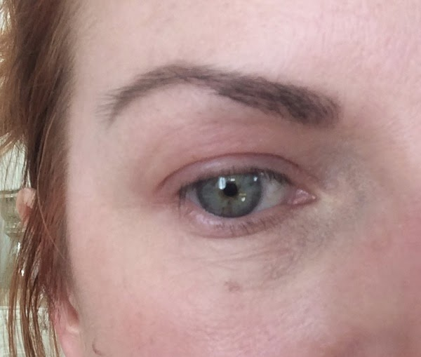 röda svullna ögonlock