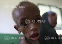 Heartbreaking Photos of Malnourished Children Dying in Somali Famine