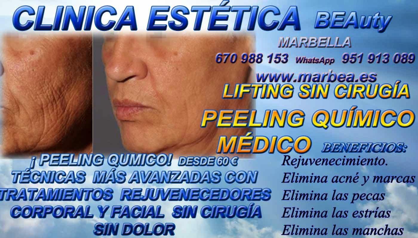 MARBELLA PEELING FACIAL QUIMICO MEDICO PARA ELIMINACIÓN , QUITAR , TRATAMIENTO: ACNÉ , MARCAS , CICATRICES , MANCHAS ,PECAS , ESTRÍAS , MANCHAS