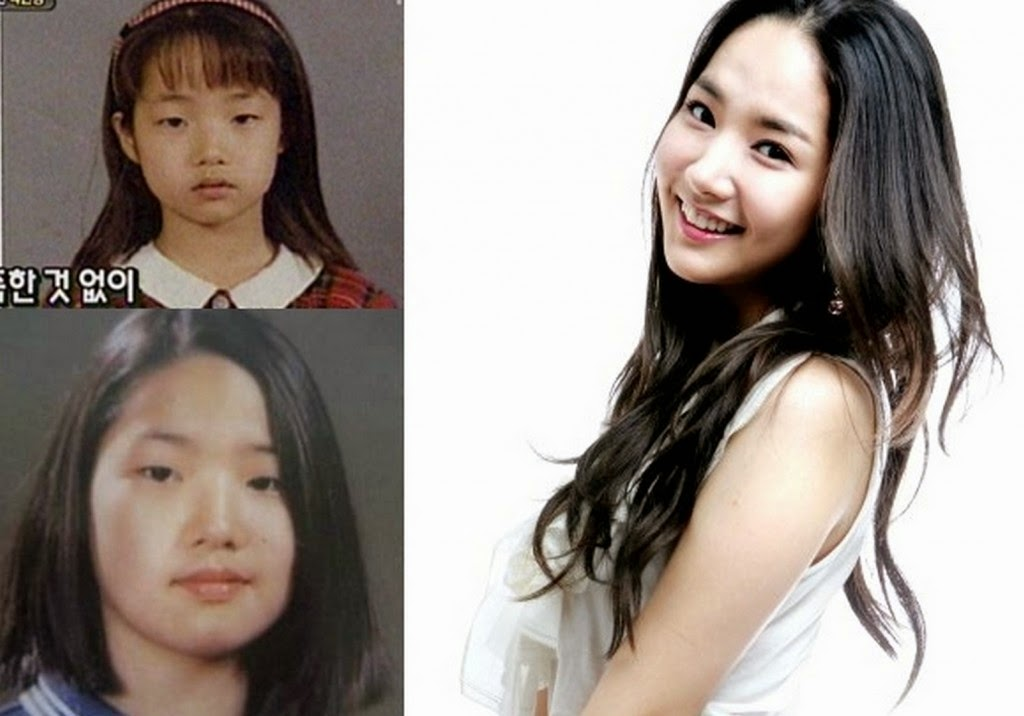 Park Min Young Plastic Surgery Before And After Pictures About
