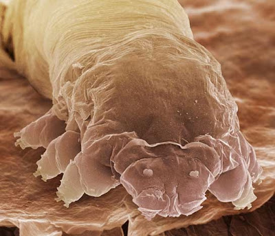 eye lash mite Demodex Folliculorum