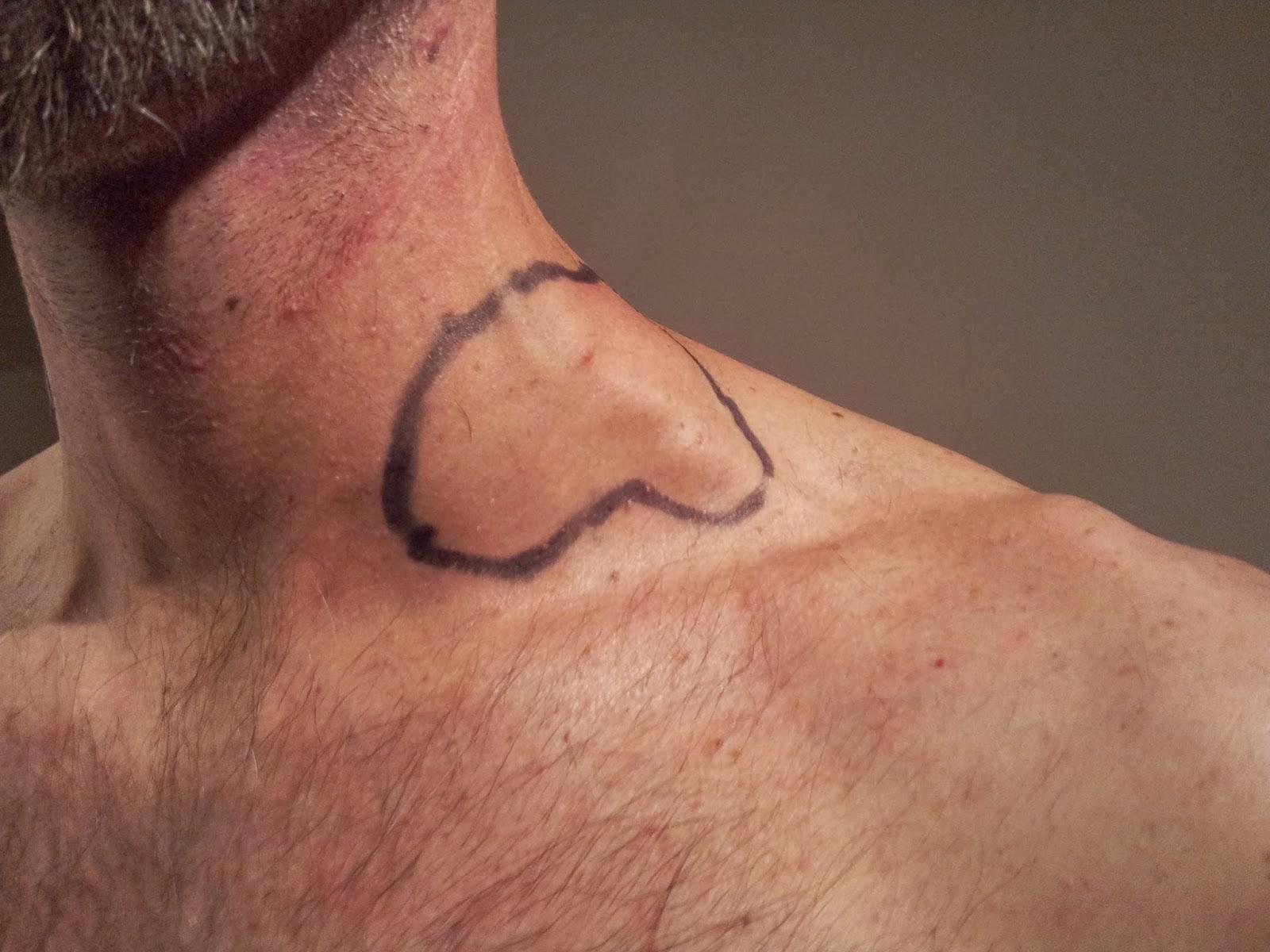 Tumör i halsen