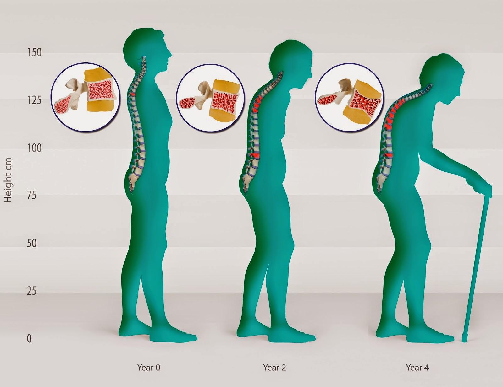 Tips Alami Mencegah Osteoporosis