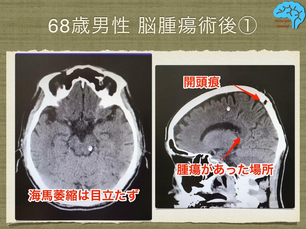 脳腫瘍術後から幻視が出現