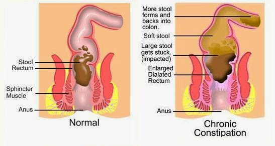 Stomach gas and flatulence what are the symptoms of gas however people who burp frequently may be swallowing too much air and releasing it before the air enters the stomach ccuart Gallery