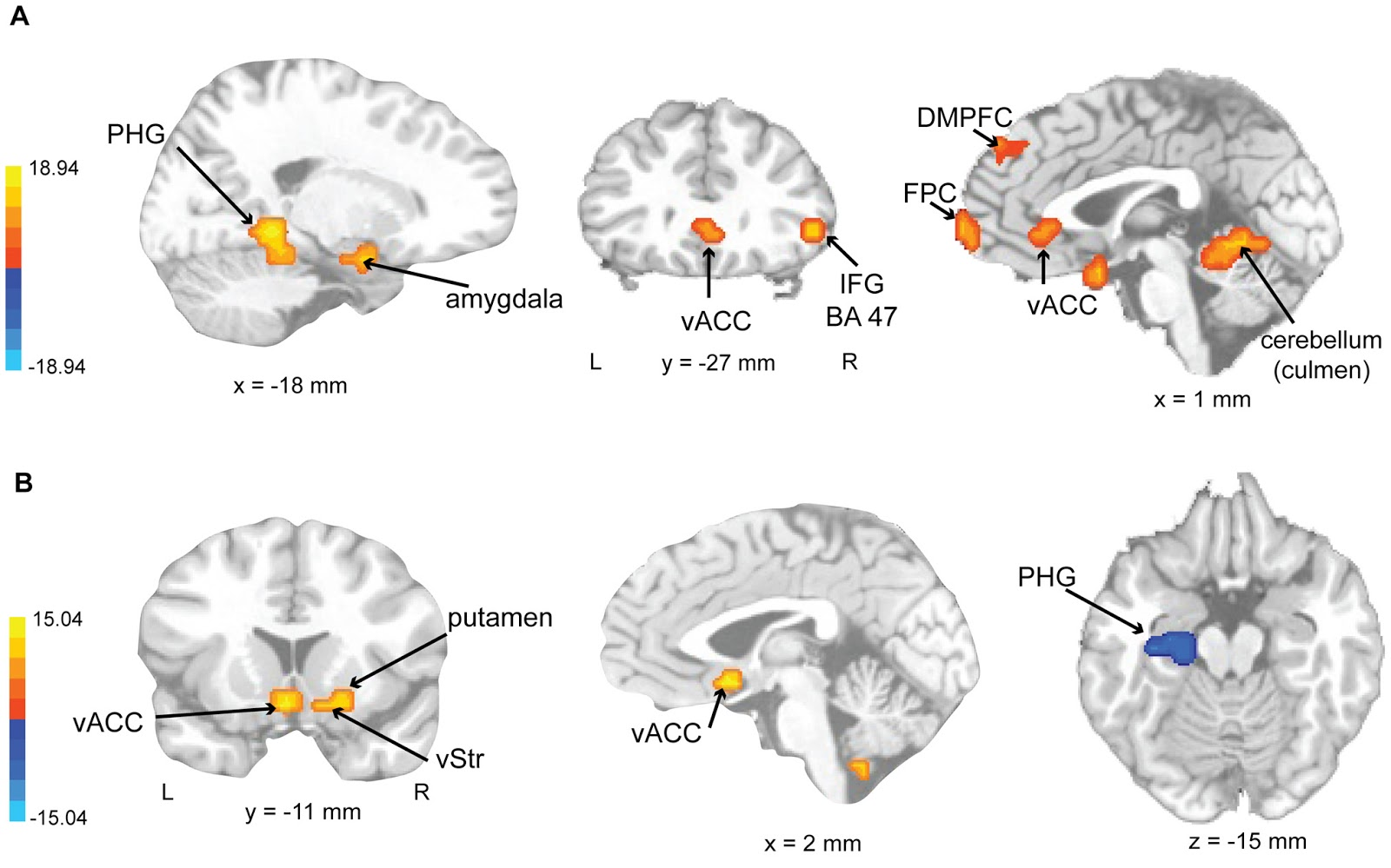 an experiment to determine the functions of mirror neurons Broca's area or the broca area / b r oʊ ˈ k ɑː / or / ˈ b r oʊ k ə / is a region in the frontal lobe of the dominant hemisphere, usually the left, of the hominid brain with functions linked to speech production.