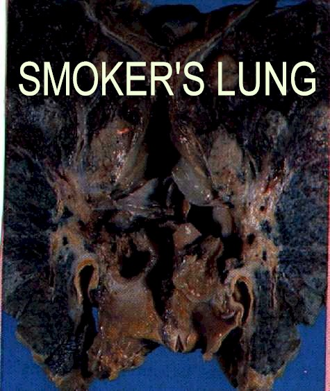 Smoking effects pictures: How smoking affects the