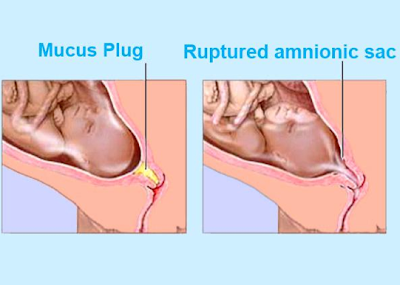 how to tell if you lose your mucus plug
