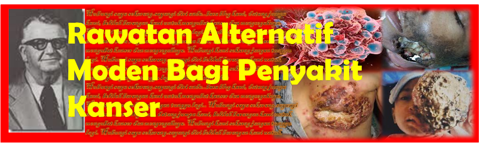 Rawatan Alternatif Moden Bagi Penyakit Kanser