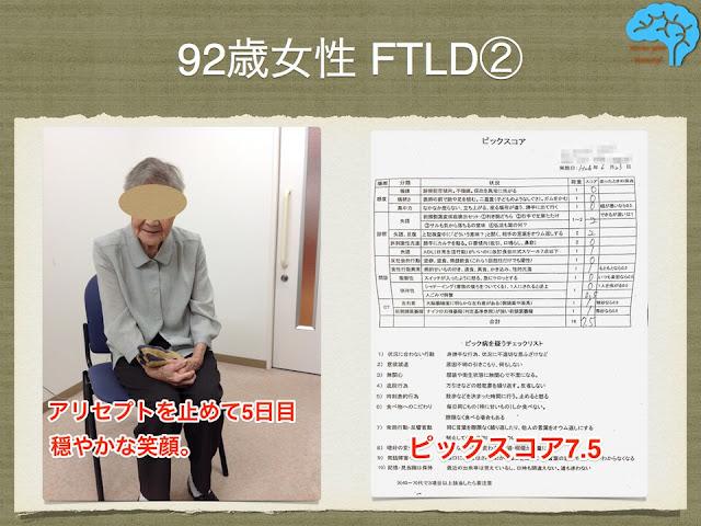 92歳女性、FTLD-SD。アリセプト中止で易怒性改善。
