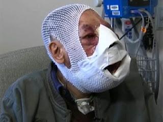 Jose Mestre After Surgery