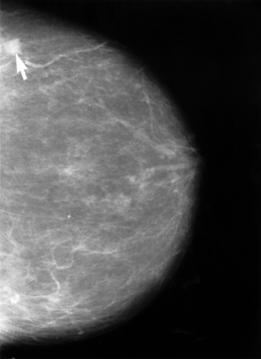areas on mammograms