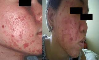 masalah kulit sensitif, ciri-ciri kulit sensitif, punca kulit sensitif, set penjagaan kulit senstifi, produk terbaik untuk masalah kulit sensitif, zarraz paramedical