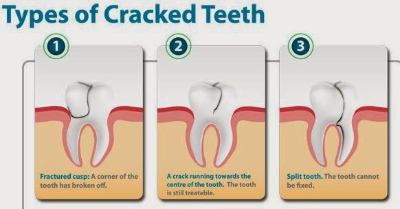 Omni Dental Group: Cracked Tooth Syndrome (CTS)