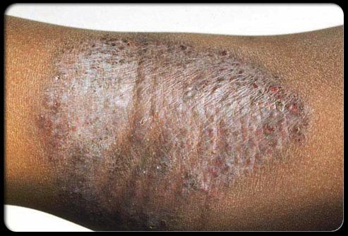 Aloe In Life: Eczema (Atopic Dermatitis) ....Causes ...