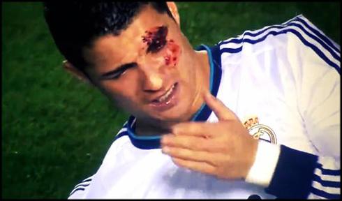 Cristiano Ronaldo se partió la ceja