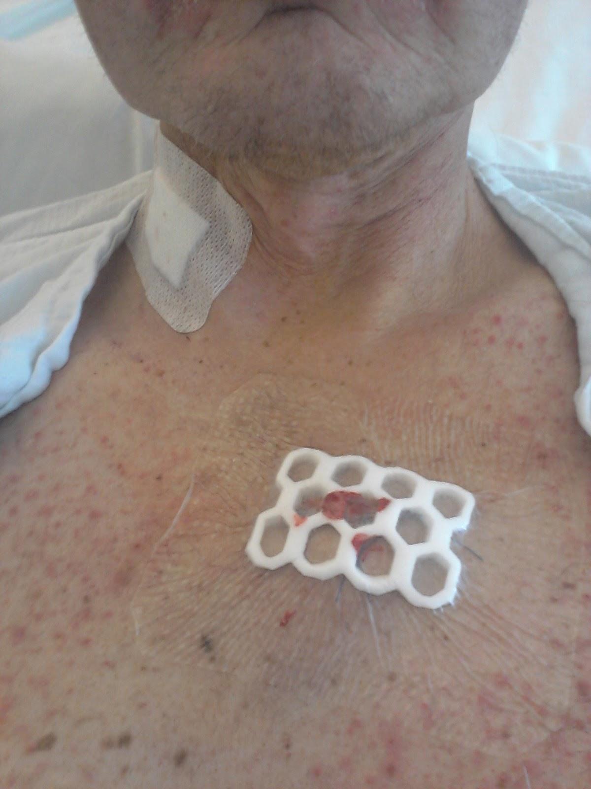 ømme bryster etter mensen thai massasje haugesund