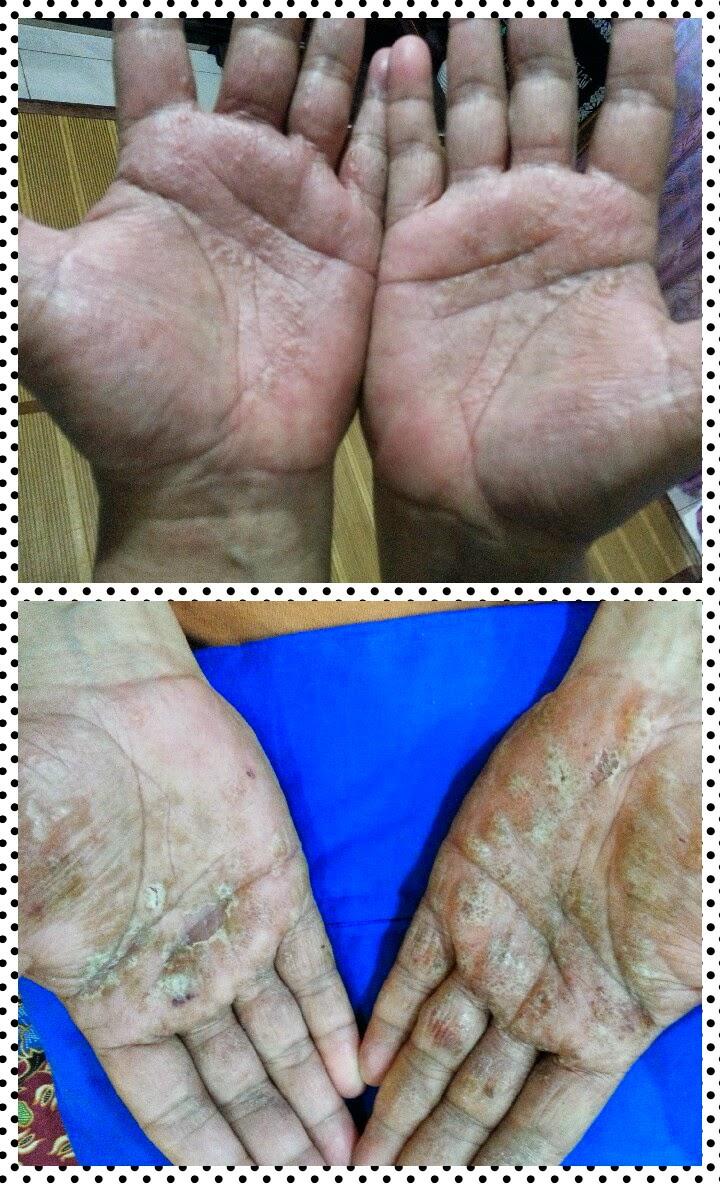 kulit gatal akibat alahan
