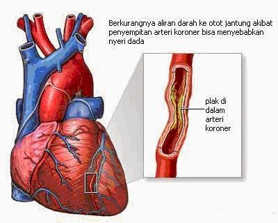 Obat Penyempitan Pembuluh Darah Di Jantung