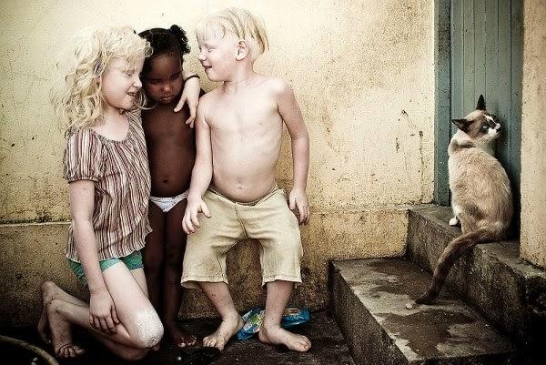 """O fotógrafo Alexandre Severo, um dos passageiros do acidente aéreo em Santos, é o autor do maravilhoso trabalho """"À Flor da Pele"""", em que retratou o dia-a-dia de irmãos albinos em uma família negra. Nasceram sem cor, numa família de pretos. Dos cinco irmãos, três sobrevivem fugindo da luz, procurando alegria no escuro. Descrição: fotografia mostra três crianças, com os pés descalços sujos, próximas a uma parede encardida: A menor, uma garotinha negra, está em pé entre os dois irmãos albinos, ela usa apenas uma calcinha branca; à esquerda, a irmã albina ajoelhada à altura da irmã negra, enlaça-lhe carinhosamente o pescoço com o braço esquerdo, ela usa uma blusa listrada em branco e marrom e short verde; à direita, o irmão albino está em pé com joelhos levemente flexionados, usa apenas bermuda bege. Atrás do seu pé esquerdo, um saco azul de salgadinhos abandonado no chão. Os irmãos albinos estão sorrindo, com olhos fechados e rostos direcionados à irmã negra que está séria e observa o chão molhado; à direita, próximo a eles, um gato siamês no segundo degrau, encostado a uma porta. A pele extremamente alva e os cabelos louros claríssimos dos irmãos albinos contrastam com a pele negra e os cabelos escuros da irmã menor.  Fim da descrição."""