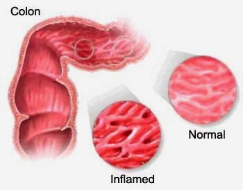 sindrome del colon irritable