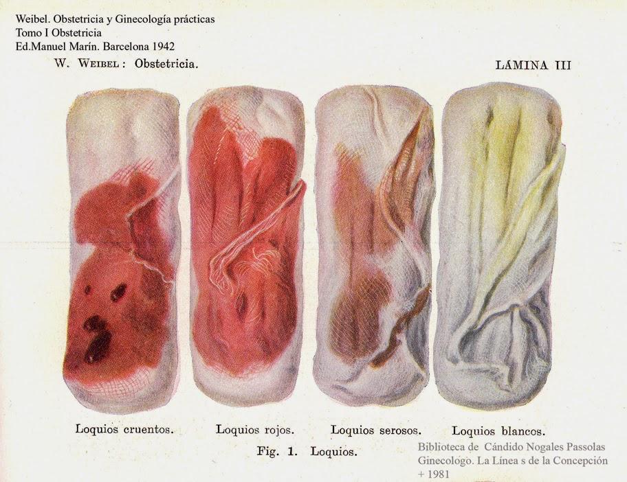 Como recuperarse de un sangrado vaginal por golpe