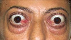 Proptosis ocular