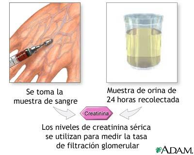plantas para acido urico dieta para bajar el acido urico en la sangre acido urico remedios para el dolor
