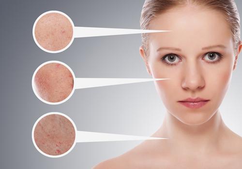 Cách làm mặt nạ chăm sóc cho da nhờn