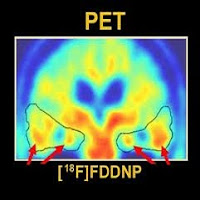 18F florbetapir PET scan for Alzheimer's
