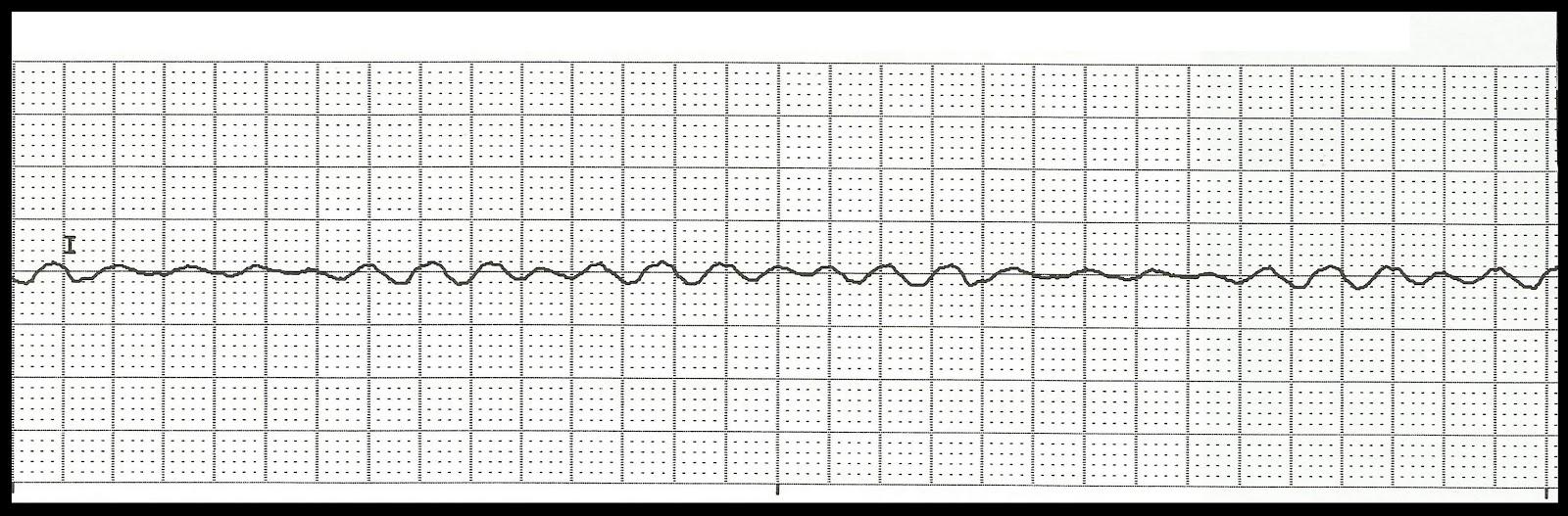 Float Nurse: EKG Rhythm Strip Quiz 123 Ventricular Tachycardia Rhythm Strip