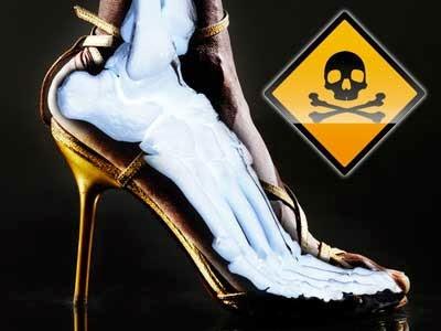 Resiko Memakai High Heels