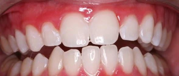 تبييض الاسنان في أسبوع