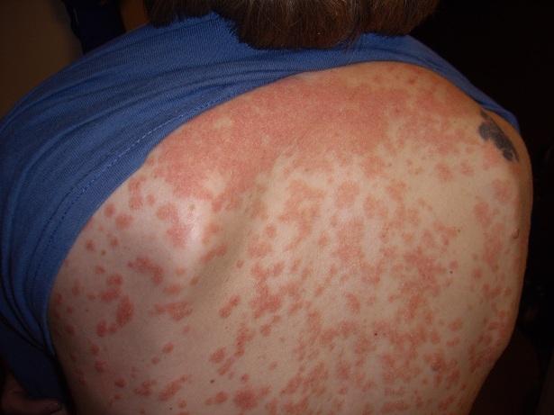 Psoriasis guttata