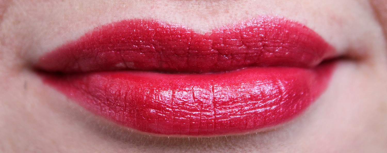 Препараты для контурной пластики губ цена