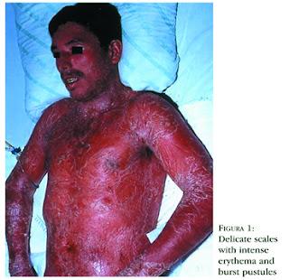 Pustulosa Acute Generalized Psoriasis (Von Zumbusch)