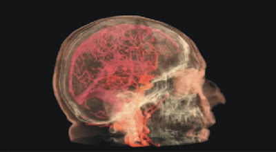 Female orgasm captured in series of brain scans Pictures