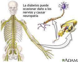 Neuropatía Motora
