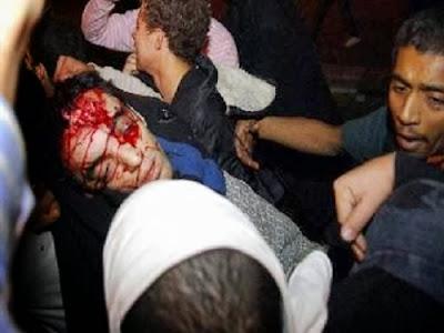 Korban kekerasan militer Mesir (foto sinaimesir.net)